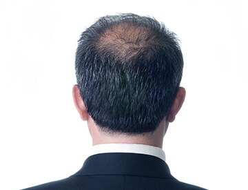Most common hair loss condition characterized by a typical pattern of receding hairline at the temples and hair thinning on the crown.