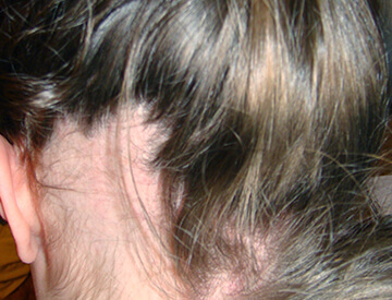 Condition in which the hair does not fall out but is pulled out by the patient in response to some emotional stress.